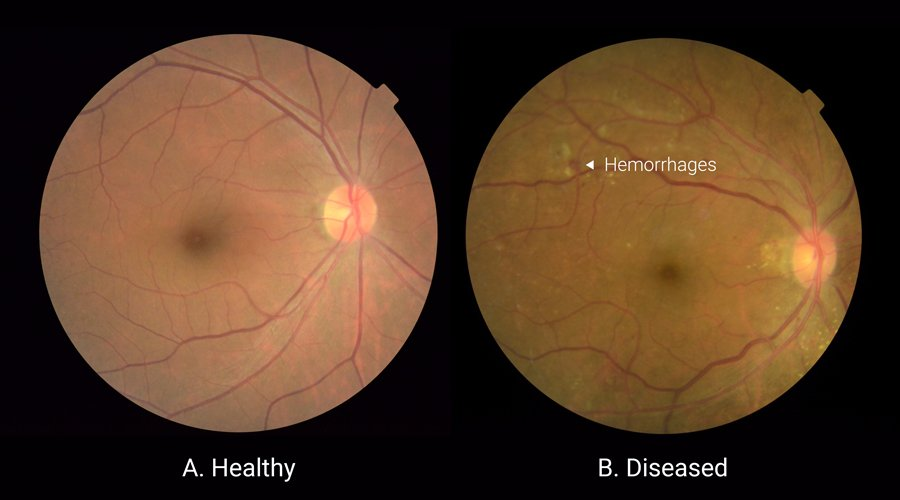 A New AI algorithm Can Detect Eye Diseases By Examining a Clean Image Of The Eye